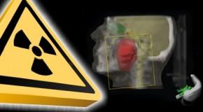 Stosowanie radioterapii radykalnej u chorych w wieku podeszłym