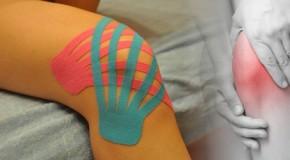 Skuteczność metody Kinesiology Taping u pacjentów z chorobą zwyrodnieniową stawów kolanowych